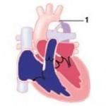 Aortenisthmusstenose1