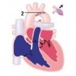 Aortenisthmusstenose2